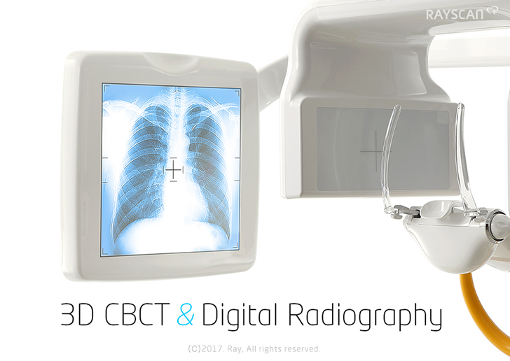 3D CBCT & Digital Radiography