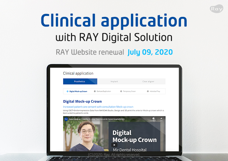 Clinical application with RAY Digital Solution